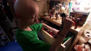 El rostro mundial de la progeria